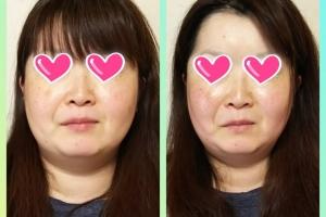 小顔美顔矯正ってどんな変化するの?